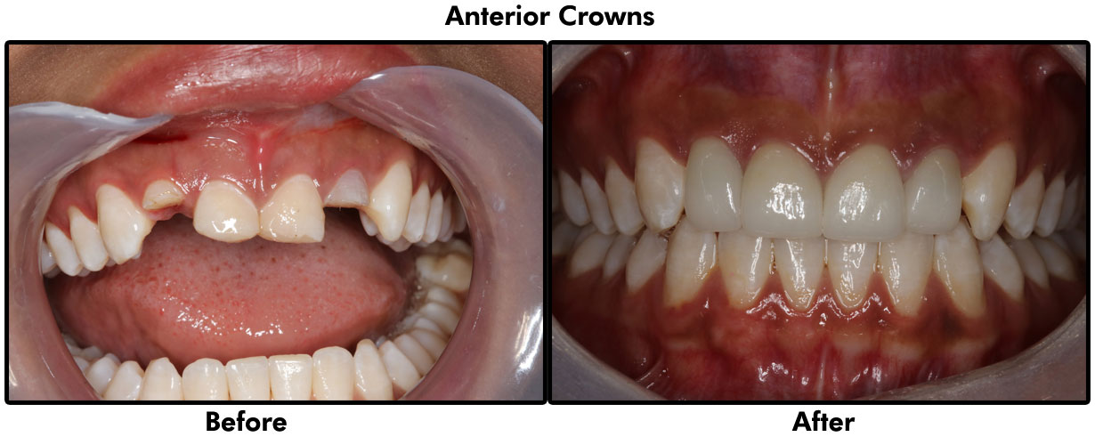 Emergency Care, Anterior Crowns