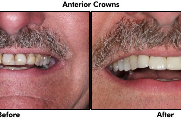 Anterior Crowns